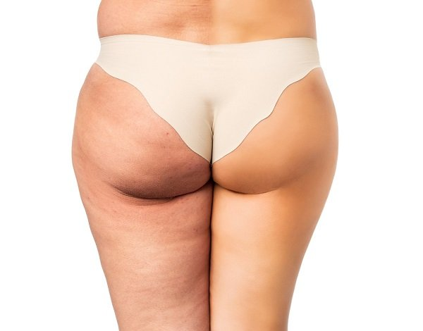 Body Wrap Inch Loss & Cellulite Reduction Treatments