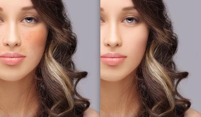 Skin Camouflage Makeup